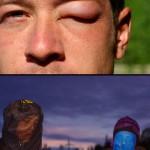 Dans certaines zones les moustiques et les mouches sont insupportables. Etienne et Morgan se protègent comme ils peuvent le temps de faire la cuisine, Siphay quant à lui se reveille le lendemain matin avec l'oeil et le visage enflé par quelques piqures...